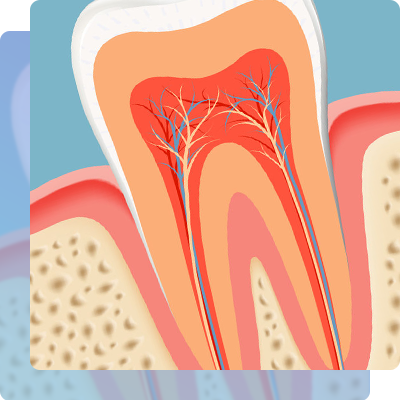 Importance to get the root canal treatment
